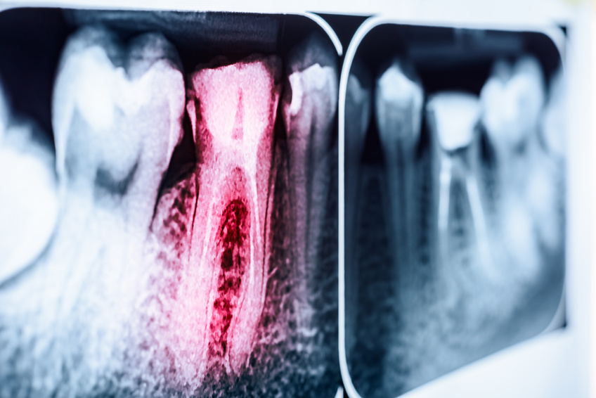 Kiedy ząb kwalifikuje się do leczenia kanałowego?